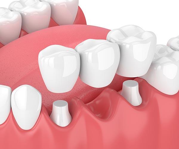 Dental Bridges | Sarcee Dental | NW Calgary | General and Family Dentist