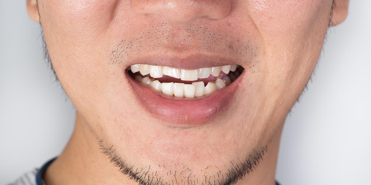 Orthodontics | Sarcee Dental | NW Calgary | General and Family Dentist