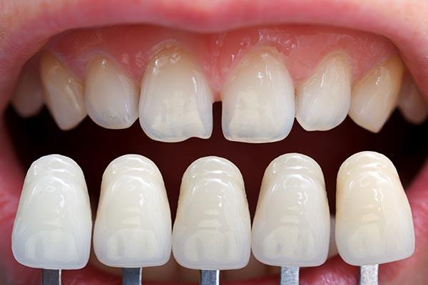 Porcelain Veneers | Sarcee Dental | NW Calgary | General and Family Dentist