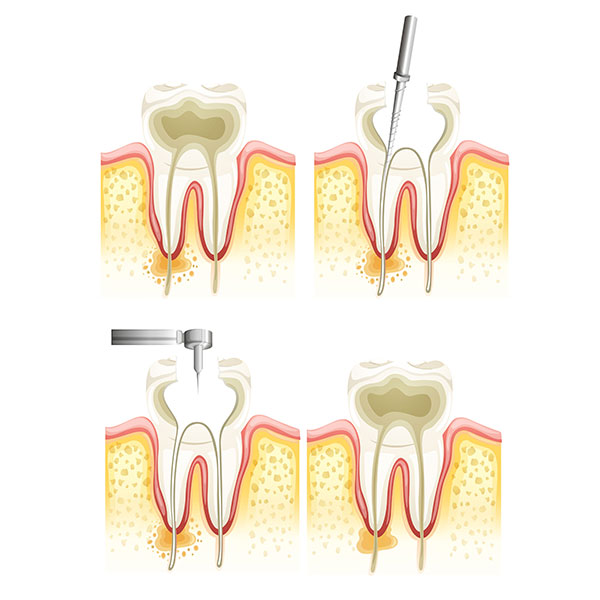 Root Canal | Sarcee Dental | NW Calgary | General and Family Dentist
