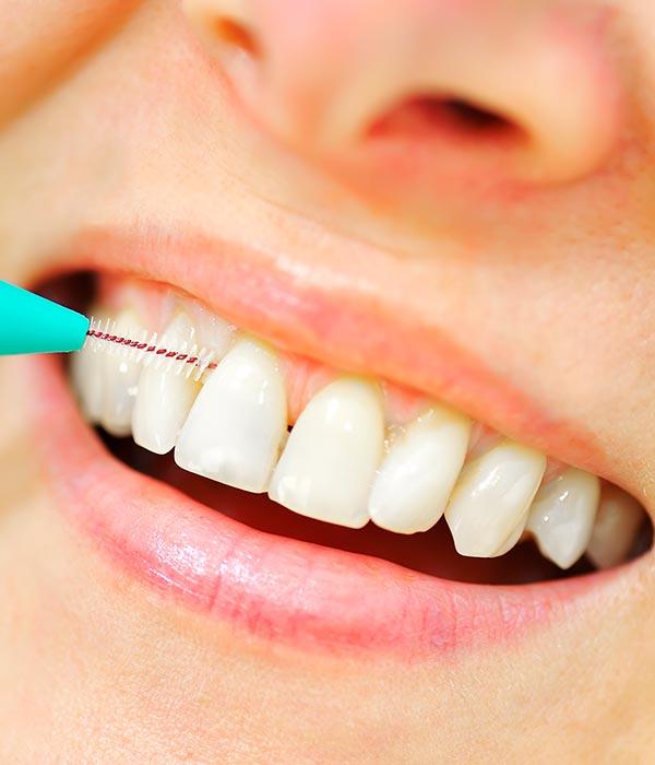 Dental Hygiene and Teeth Cleanings | Sarcee Dental | NW Calgary | General and Family Dentist