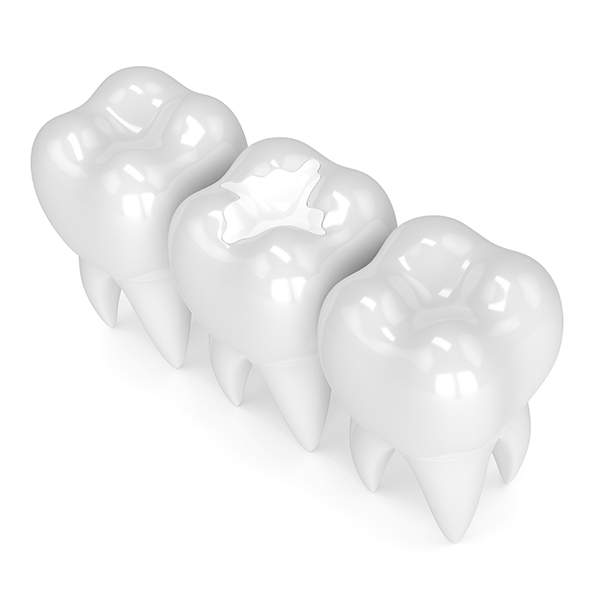 White Fillings   Sarcee Dental   NW Calgary   General and Family Dentist